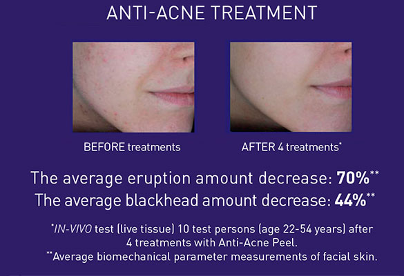 Anti Acne Treatment