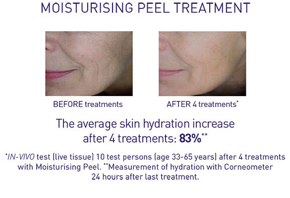 Moisturising treatment